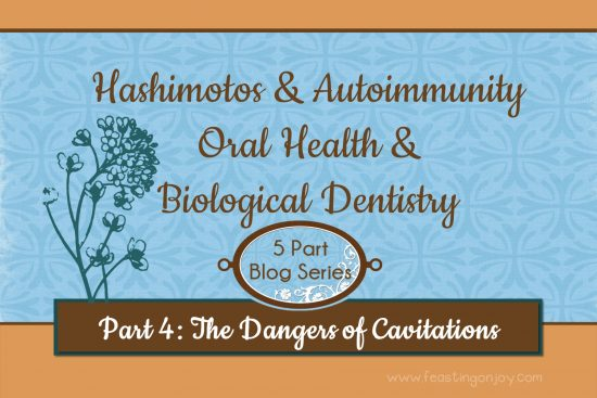 Hashimotos and Autoimmunuity Oral Health and Biological Dentistry Part 4 The Dangers of Cavitations