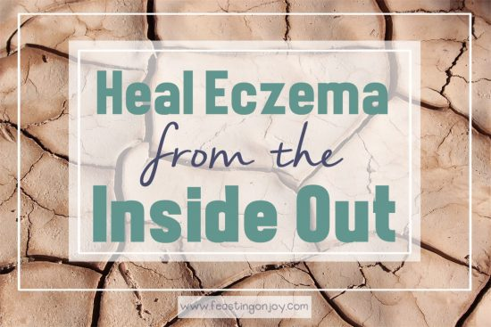 Heal Eczema from the Inside Out 3 | Feasting On Joy