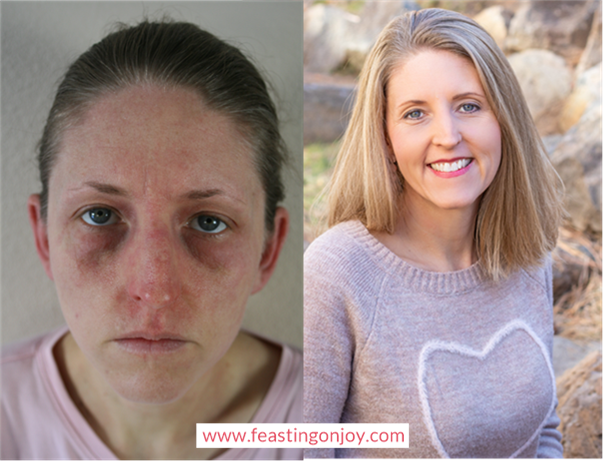 Jennifer, FNTP, CEOC | Before and After Healing Hashimoto's | Feasting On Joy